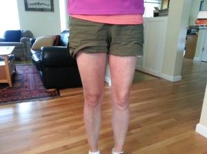 Knee(1)